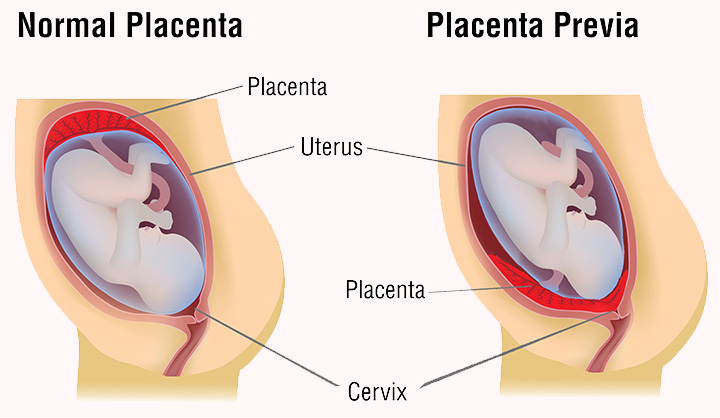 Placenta-Previa by www momjunction com
