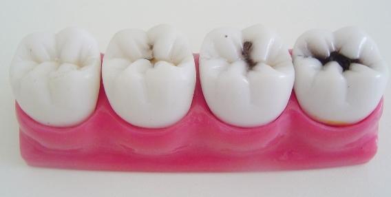 Da esquerda para a direita: Dente saudável - Dente com ponto superficial de cárie - Dente com cárie moderada - Dente com cárie avançada que necessita de tratamento de canal