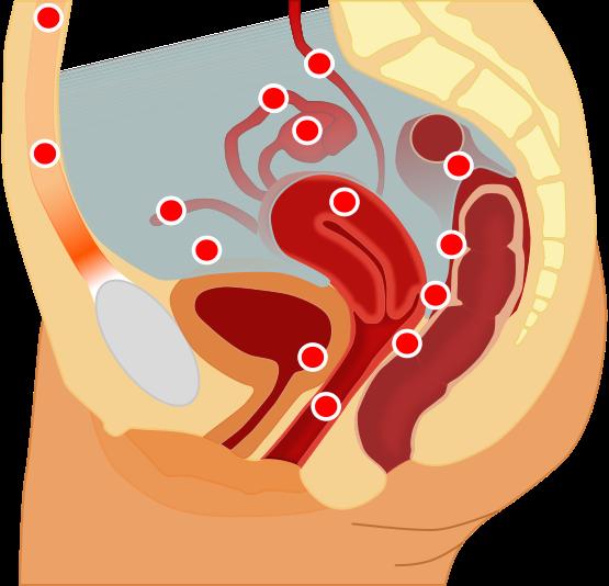 Áreas mais comuns de serem atingidas pela endometriose. Imagem: Wikipedia Commons
