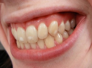 fluorose dentaria