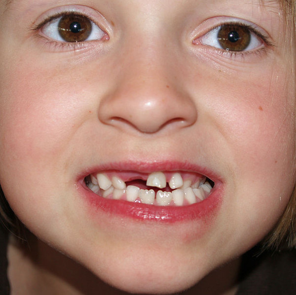 dentes-tortos