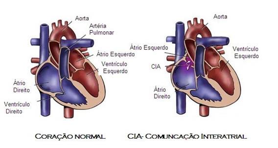 coracao-03