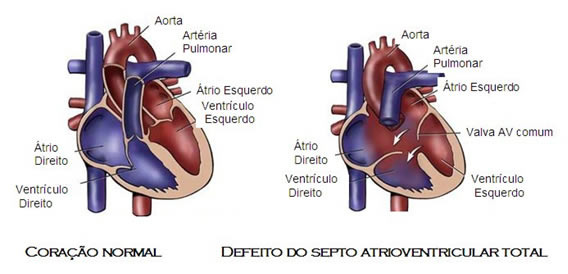 coracao-Defeito do Septo Atrioventricular