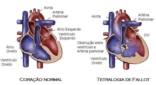 Imagens: Reprodução www.brunorocha.com.br