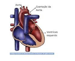 Coarctação da aorta