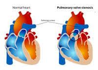 normofluxo pulmonar 01