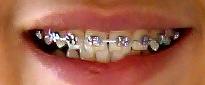 dente torto-aparelho fixo