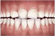 problemas-ortodonticos-apinhamento