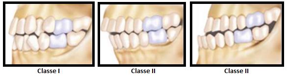 problemas-ortodonticos-classe-I-II-III