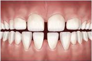 problemas-ortodonticos-diastemas