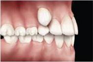 problemas-ortodonticos-erupcao-anormal