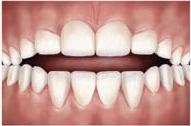 problemas-ortodonticos-mordida-aberta