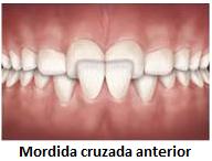 problemas-ortodonticos-mordida-cruzada-anterior