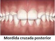 problemas-ortodonticos-mordida-cruzada-posterior