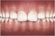 problemas-ortodonticos-mordida-profunda