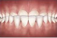 problemas-ortodonticos-prognatismo