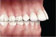problemas-ortodonticos-sobresaliencia