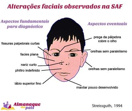 sindrome-alcoolica-fetal