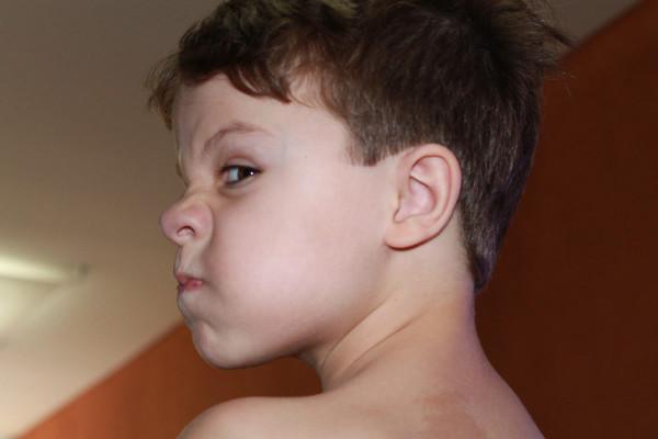 """Lucas após ouvir um """"não"""" para o chocolate, guloseima permitida somente no final de semana."""