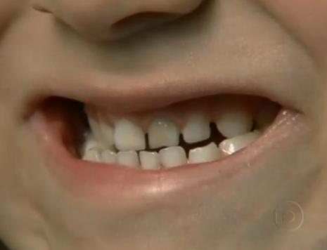 Dentes Escurecidos O Dentinho Do Meu Filho Esta Escurecendo O Que