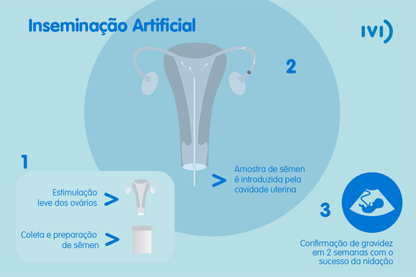 Inseminacao-artificial-IA