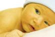 Icterícia no bebê: o que é, como diagnosticar e como tratar