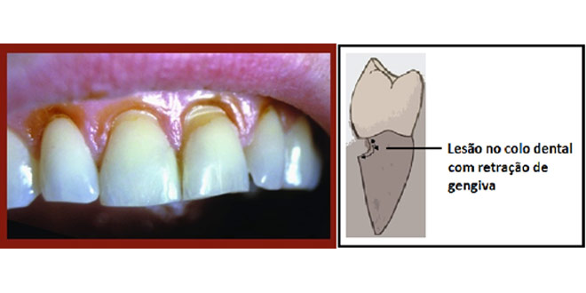 sensibilidade-nos-dentes