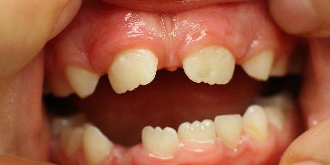 dentes-nascendo-separados-01-660x330