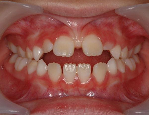 dentes-nascendo-separados-02-600x461