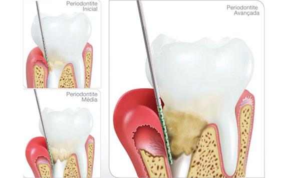 diabetes-periodontite-by-colgate