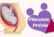 O que é Placenta Previa – em vídeo