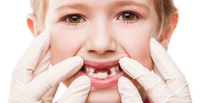 dente permanente não nasce